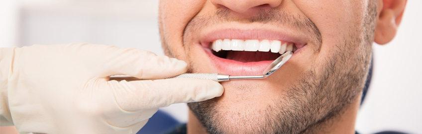 periodontalslide3
